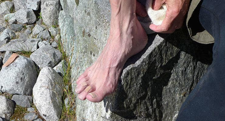 how to prevent blisters heel blister